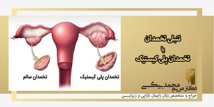 تنبلی-تخمدان